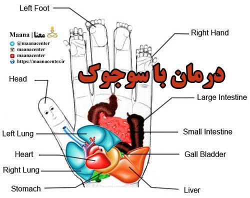 درمان-با-سوجوک